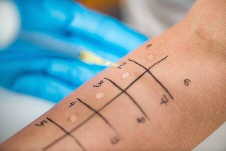 Allergie - Prick tests cutanés sur le bras d'une femme Banque d'images