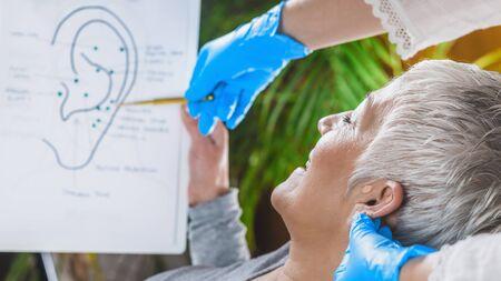 Patienten lernen über Ohrpunkte in der Aurikulotherapie-Behandlung. Standard-Bild