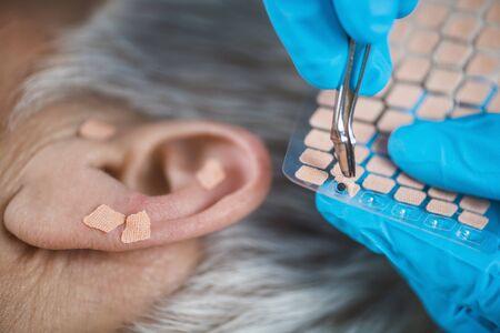 Auricoloterapia o trattamento auricolare sull'orecchio umano, primo piano. Mano del terapista che applica l'autoadesivo del seme dell'orecchio di agopuntura con le pinzette Archivio Fotografico
