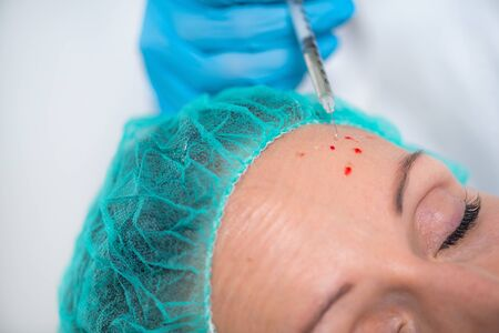PRP Face Injection. Mid aged Woman Receives Platelet Rich Plasma Face Injection for Reduction of Skin Wrinkles