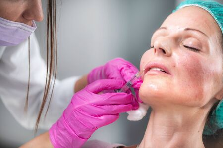 Hyaluronic Acid Injection Filler. Beautiful woman receives hyaluronan injections for lips