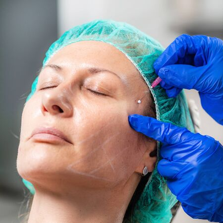 3D Meso Thread Face Lifting Treatment. Mesotherapy in Anti-aging Aesthetic Cosmetic Medicine