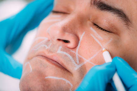 Anti-aging dermal filler treatment for men. Doctor with surgical gloves marking middle-aged man's face for dermal filler treatment. Stock Photo