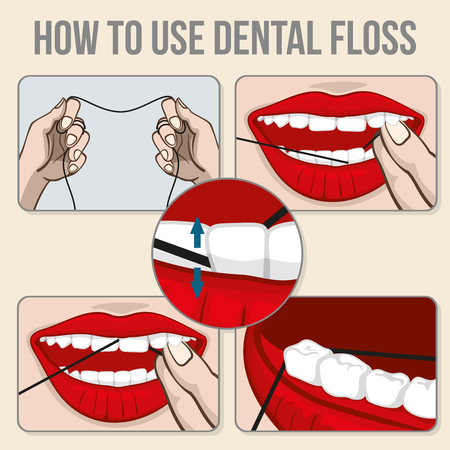 flossing: Flossing teeth infographics. Hygiene flossing tooth, medicine dental flossing and oral care illustration