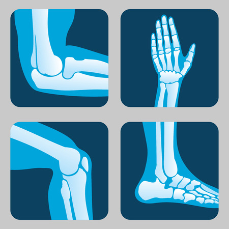 Medical orthopedic vector of set.