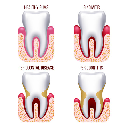 periodontitis: Human gum disease, gums bleeding. tooth disease prevention dental, oral care vector infographics. Gingivitis and periodontal, periodontitis illustration