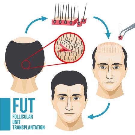 Männliche Haarausfall Behandlung medizinischen Vektor infografischen. Krankheit Haar und Kahlheit, Wachstum und Transplantation Haar Illustration Standard-Bild - 78229290