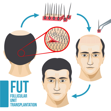 Male hair loss treatment medical vector infographic. Disease hair and baldness, growth and transplant hair illustration Illustration