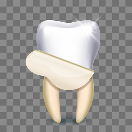 Tooth veneer whitening dental technician isolated on transparent background. Vector illustration
