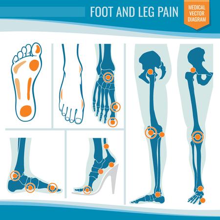 Foot and leg pain. Arthritis and rheumatism orthopedic medical vector diagram.