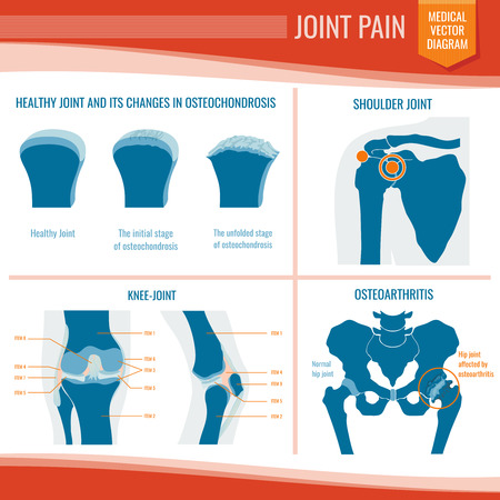 Osteoarthritis and rheumatism joint pain medical vector infographic Vettoriali