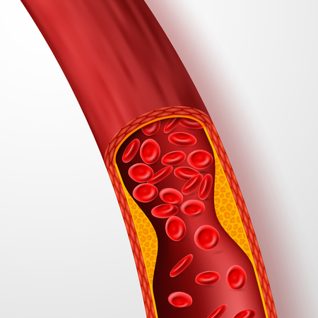 Vaso sanguigno ostruito, arteria con trombo di colesterolo. vena 3D con illustrazione vettoriale di coagulo. Sangue dell'arteria medica, malattia del colesterolo, circolazione del flusso bloccata