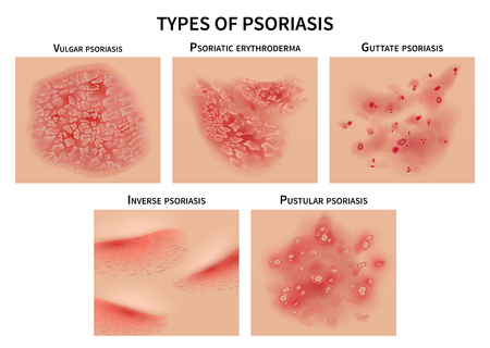 Psoriasis types. Skin hives, derma diseases. Closeup medical vector illustration. Dermatology allergy, medical itch and rash, symptom of epidermis