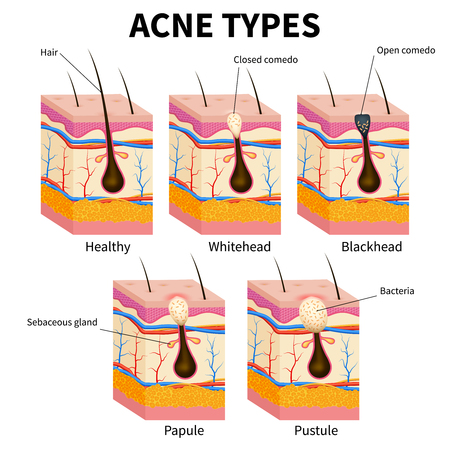 Acne types. Pimple skin diseases anatomy medical vector diagram. Illustration of follicle and pimple, medicine anatomy, papule and pustule
