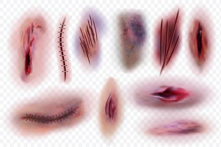 Cicatrices réalistes. Plaie, points de suture chirurgicaux et ecchymoses, coupures cutanées. Ensemble isolé de vecteur de blessures sanglantes. Illustration d'une égratignure chirurgicale, d'une plaie coupée et d'une couture