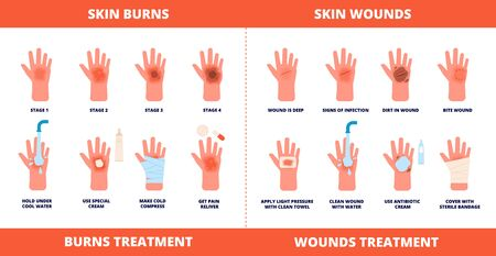 Skin first aid. Burns treatment, wounds and trauma symptoms. Degree burn, help hand healing with cream, bandaging and pills vector poster. Injury skin and wound care, treatment hurt illustration