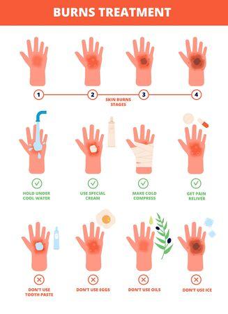 Quemadura de piel. Tratamiento de manos quemadas, protección contra quemaduras. Primeros auxilios y tratamiento, etapas de quemado. Ilustración de tratamiento médico de vector plano. Grado quemado, quemado, piel, mano, daño y atención médica.