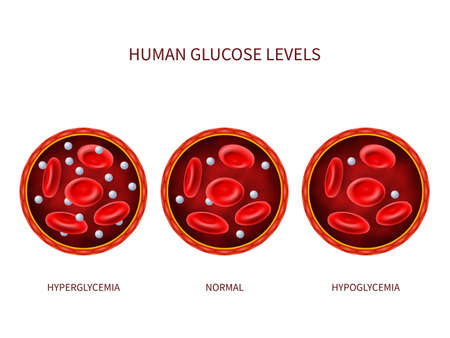 Human glucose levels hyperglycemia, normal, hypoglycemia. Hematology vector diagram with blood vessel, erythrocytes and sugar. Illustration of diabetic illness, disease diagnostic