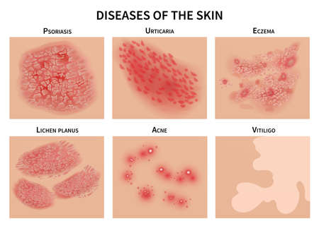 Skin diseases. Derma infection, eczema and psoriasis. Dermatology vector illustration. Disease medical epidermis, dermatitis infection