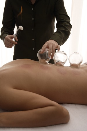 therapist applying cups for therapy