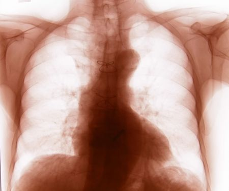 Chest X-ray (inverted) Stock Photo