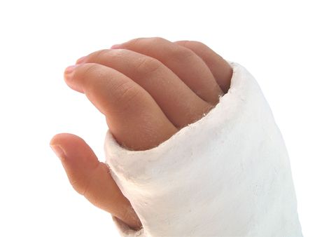 broken arm: childs arm in plaster over white Stock Photo