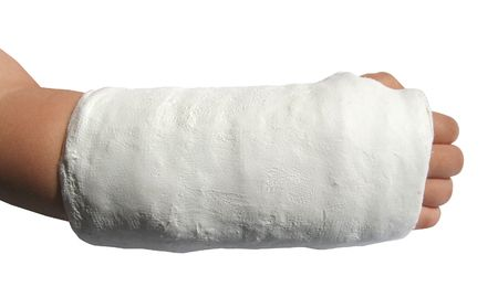 Fractured forearm in plaster, over white