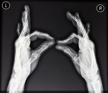 radiation therapy: Plain X-ray of two hands showing ok sign Stock Photo