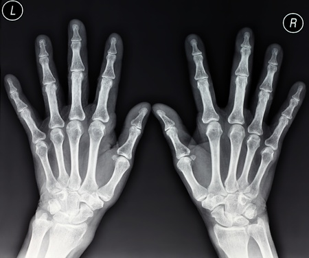 X-ray of two hands extended, frontal view Stock Photo