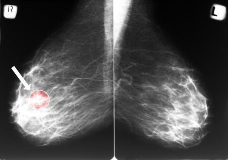 Mammogram with arrow indicating a breast cancer in the right breast