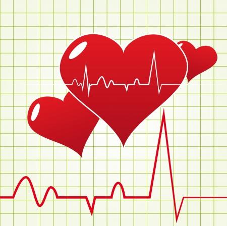 Abstract Heart Beat Diagram Stock Vector - 17084352