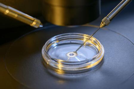 in vitro: Un Profesional Fertilización In Vitro Laboratorio del microscopio Primer