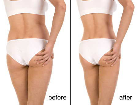 Cellulite treatment program for women, weight loss. Figure of a young girl before and after Standard-Bild