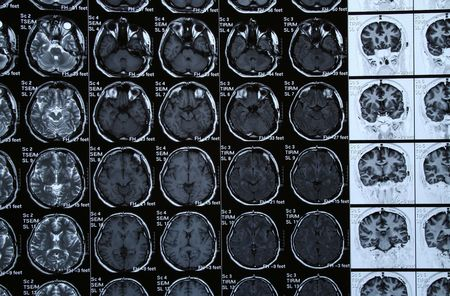 Brain Scan Stock Photo - 382674