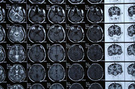 tomograph: Brain Scan