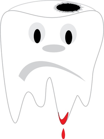 Tooth with dental caries, dissatisfied tooth 向量圖像