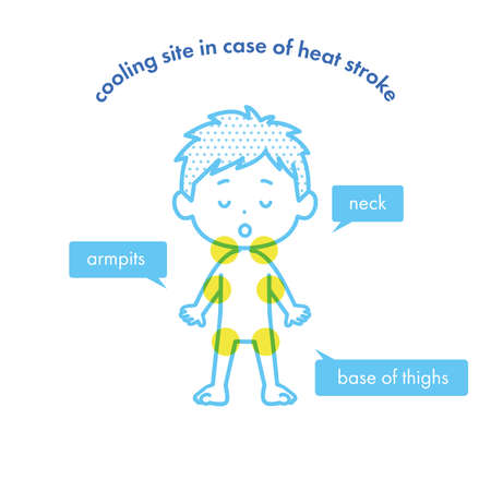 It is an illustration showing the cooling site when there is a suspicion of heat stroke. Vector image.