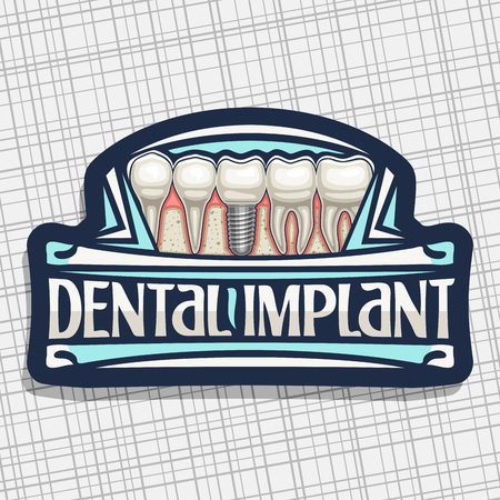 Vector logo for Dental Implant, dark decorative label with 5 cartoon human teeth in jaw, original lettering for words dental implant, sign board for professional denture clinic on gray background.