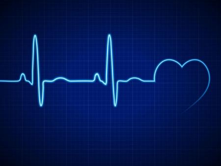 Vector Ilustración ritmo cardiaco ekg