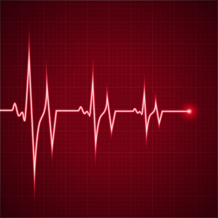 Vector Illustration heart rhythm ekg