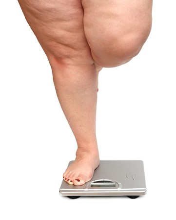 fat person: women legs with overweight standing on scales