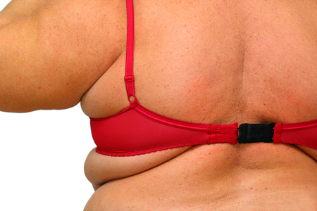 back of obese overweight women in underwear close-up photo