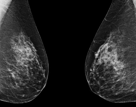 Mammography photo