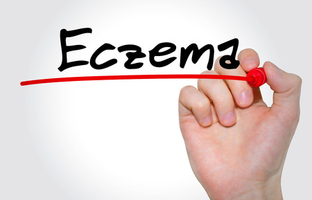 eczema: Hand writing inscription Eczema with marker, concept Stock Photo