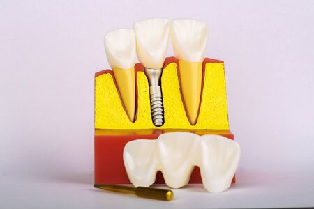 Dental Implant Model. Modern stomatology concept. Selective focus. Space for text.
