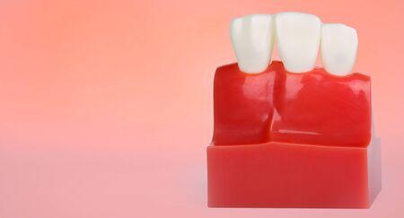Dental teeth model with copy space Archivio Fotografico - 133902949