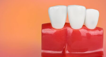 Dental teeth model with copy space
