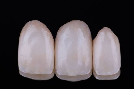 Aesthetic ceramic crown on black mirror background