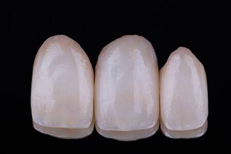 Estetyczna korona ceramiczna na czarnym lustrzanym tle