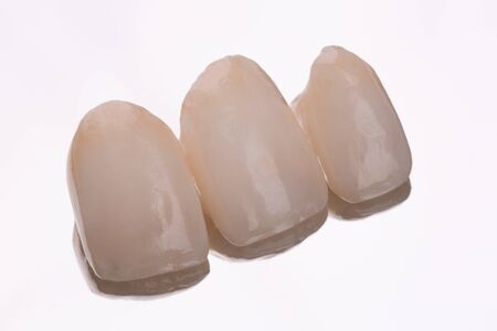 Ceramic veneers. Dentistry teeth concept